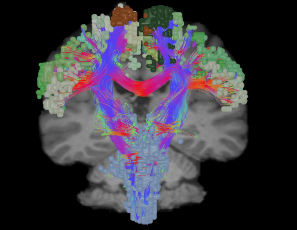 Board certified brain tumor surgeon san antonio